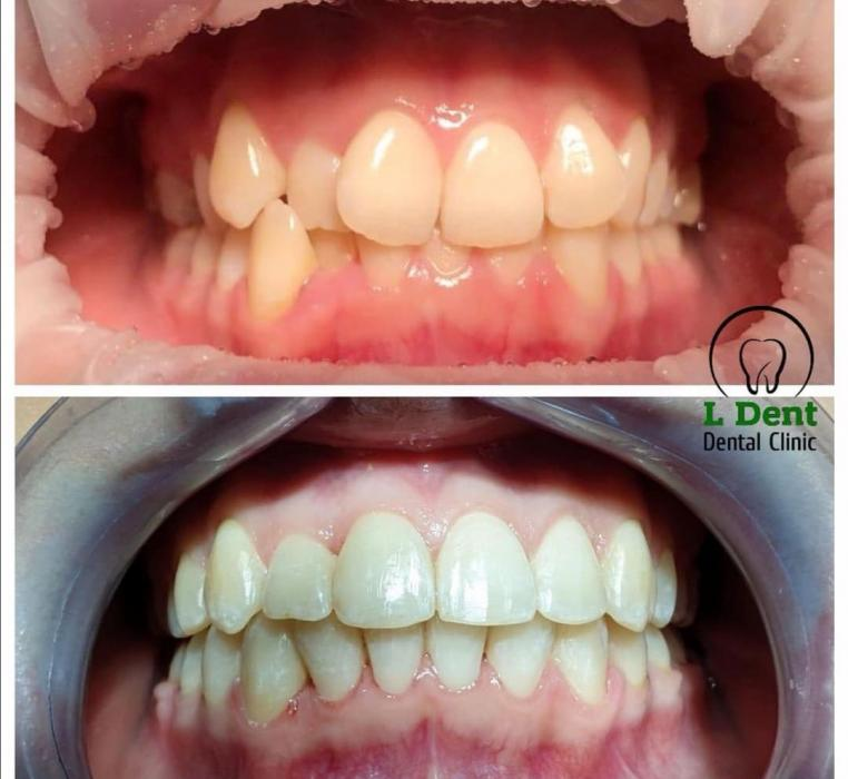Исправление выраженной скрученности зубов с помощью металлической брекет-системы.