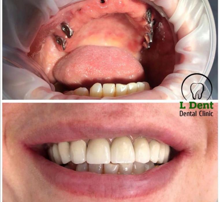 В процессе лечения удалены зубы верхней челлюсти, проведён синус-лифтинг для увеличения объёмов костной ткани и последующей фиксации имплантов, подсадка костных блоков, проведена винтовая фиксация протеза на балке с последующей установкой  одиночных корон