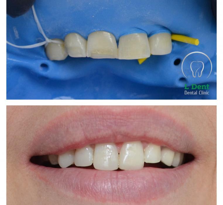 Проведена эстетическая реставрация дефекта передних зубов композитными винирами. Процедура занимает примерно 3-4 часа.