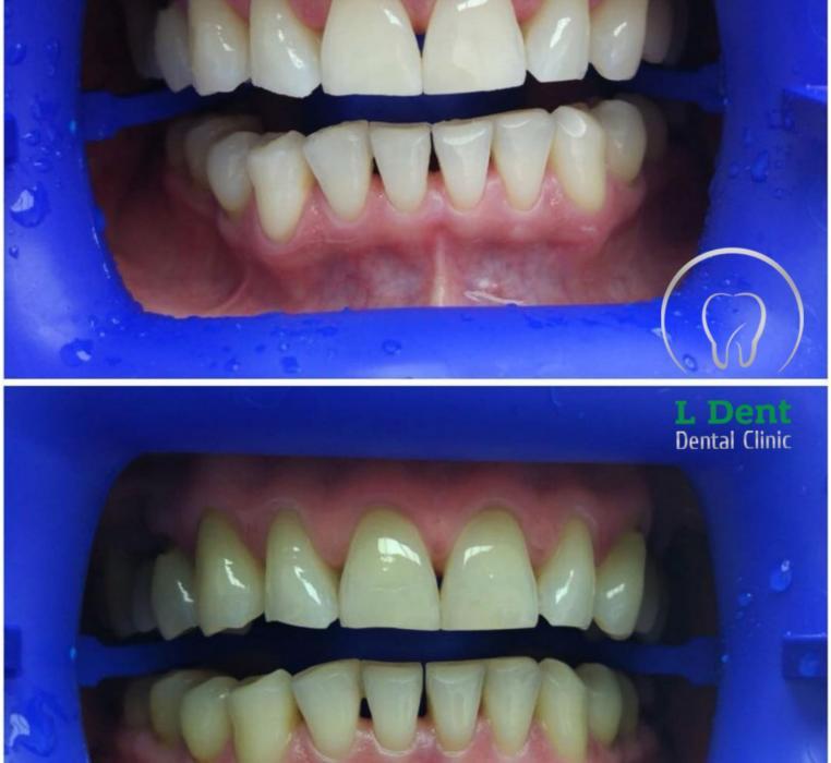 Отбеливание системой ZOOM 4. Такой вид отбеливания считается самым безопасным, так как нет нагревания тканей зуба. Ультрафиолет воздействует на гель для отбеливания, в ходе чего высвобождаются молекулы кислорода, которые проникают внутрь зуба и тщательно