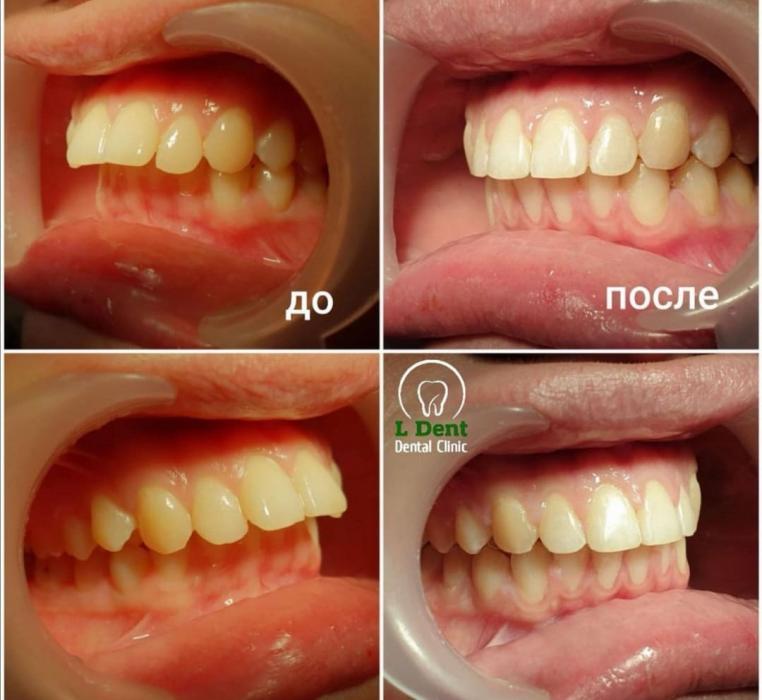 Ортодонтическое лечение в течении 11 месяцев.