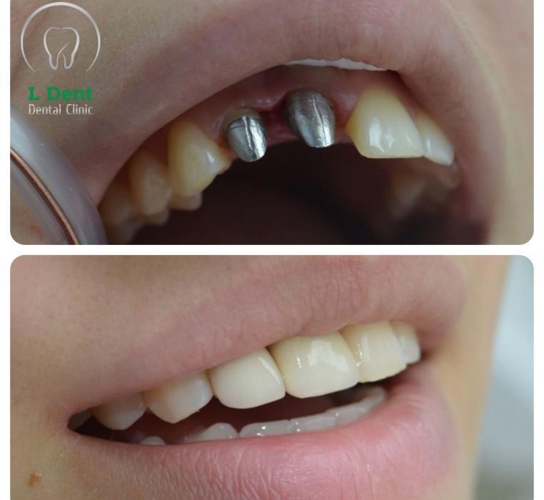 Восстановление разрушенных зубов с помощью литых культевых вкладок, и на них установлены две керамические коронки.
