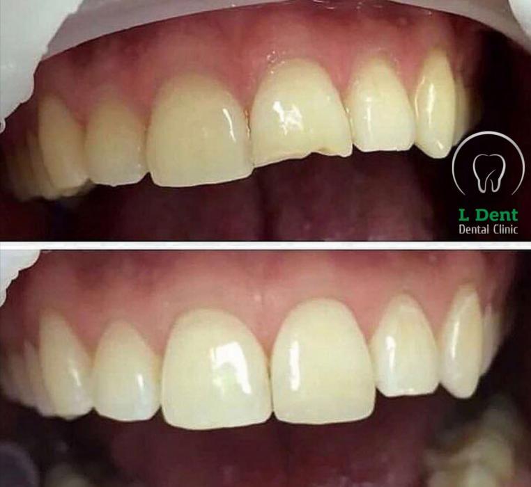 Реставрация скола переднего зуба.