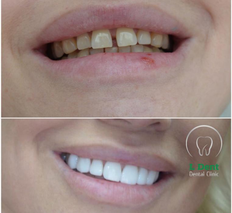 Установка керамических виниров E-MAX. Зубы не подвергались обточке, перед установкой виниров  была проведена только комплексная гигиена полости рта.