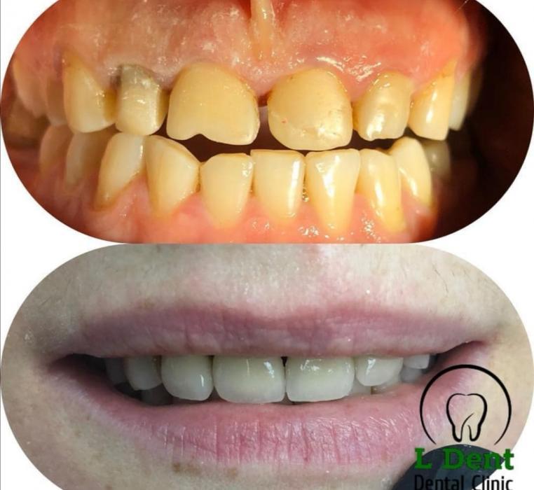 Восстановление верхнего зубного ряда при помощи металлокерамических коронок (4 единицы).