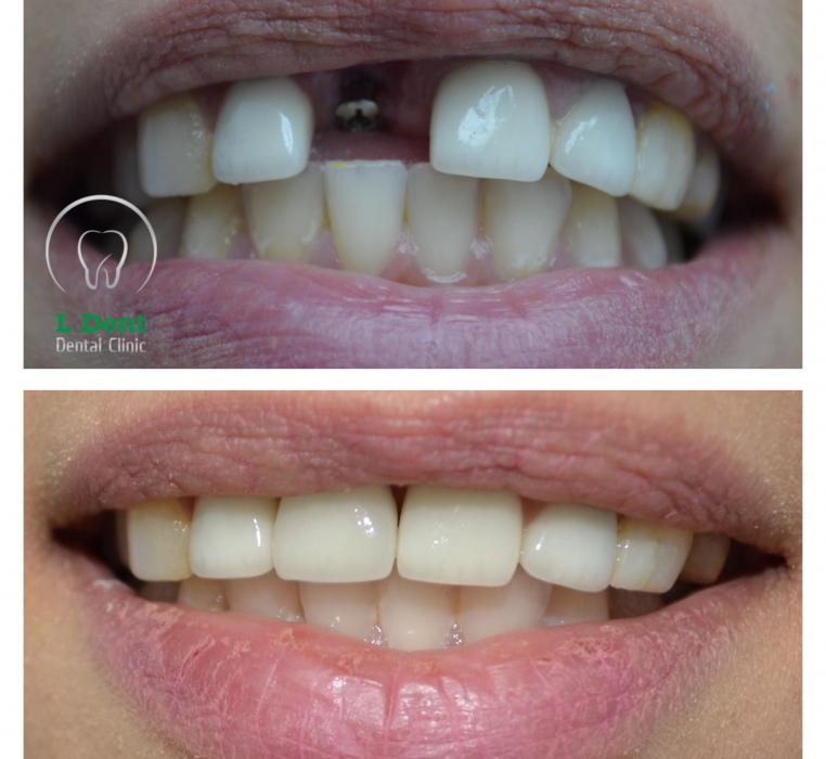 Установка импланта Simple Swiss и профессиональная гигиена полости рта.