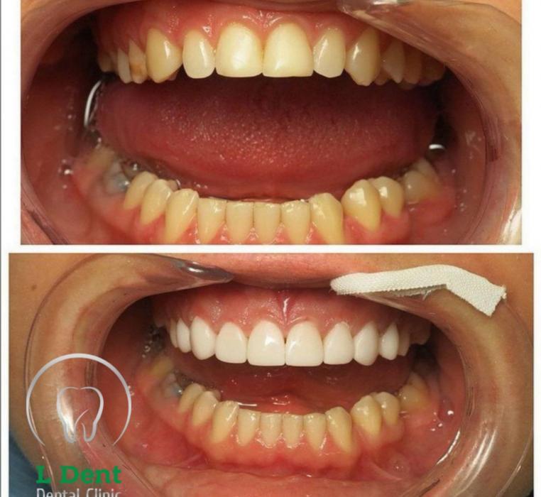 Установка тончайших виниров на верхний ряд зубов. Композитные виниры – это тонкие накладки на зубы, изготовленные из композитных материалов путём послойного нанесения.