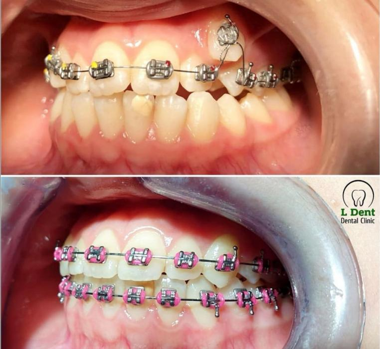 Результат лечения в течении 1 года и 2-х месяцев. Лечение проводилось без удаления премоляров.