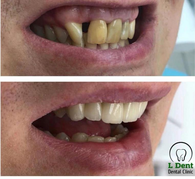 Результат совместной работы терапевта и ортопеда – удаление нервов, восстановление зубного ряда коронками из диоксида циркония, 6 единиц.