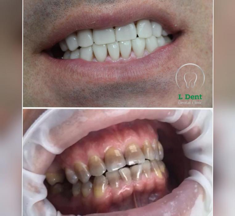 Тетрацеклиновые зубы – необратимый стойкий дисколорит, который возникает в результате отложения в твёрдых тканях зуба комплексных соединений тетрациклина с кальцием. Это случается из-за приёма беременной жениной или ребёнком антибиотиков
